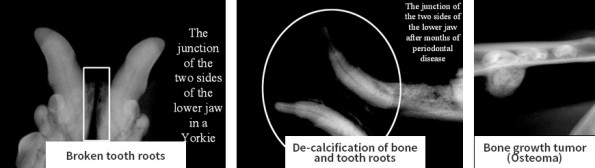 The images below are just a few examples of what we find during routine dental examinations. Utilizing Digital Dental Radiology, we are able to detect abnormalities that would otherwise remain undetected.
